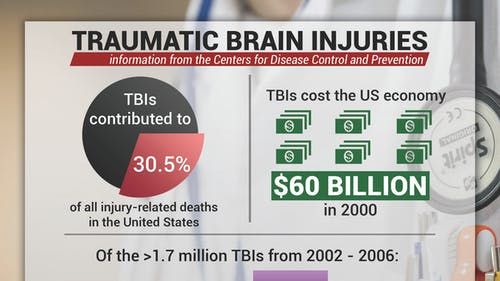 Nearly 1.7 million people sustain a traumatic brain injury every year, with 52,000 victims dying from it. About 1.365 million are treated and released immediately, with the remaining 275,000 staying in a hospital. – Photo by Photo by Michael Makmur | The Daily Targum